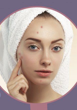 como combatiur el acne hormonal